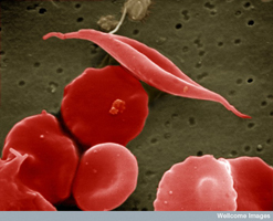 B0000521 SEM sickled and other red blood cells